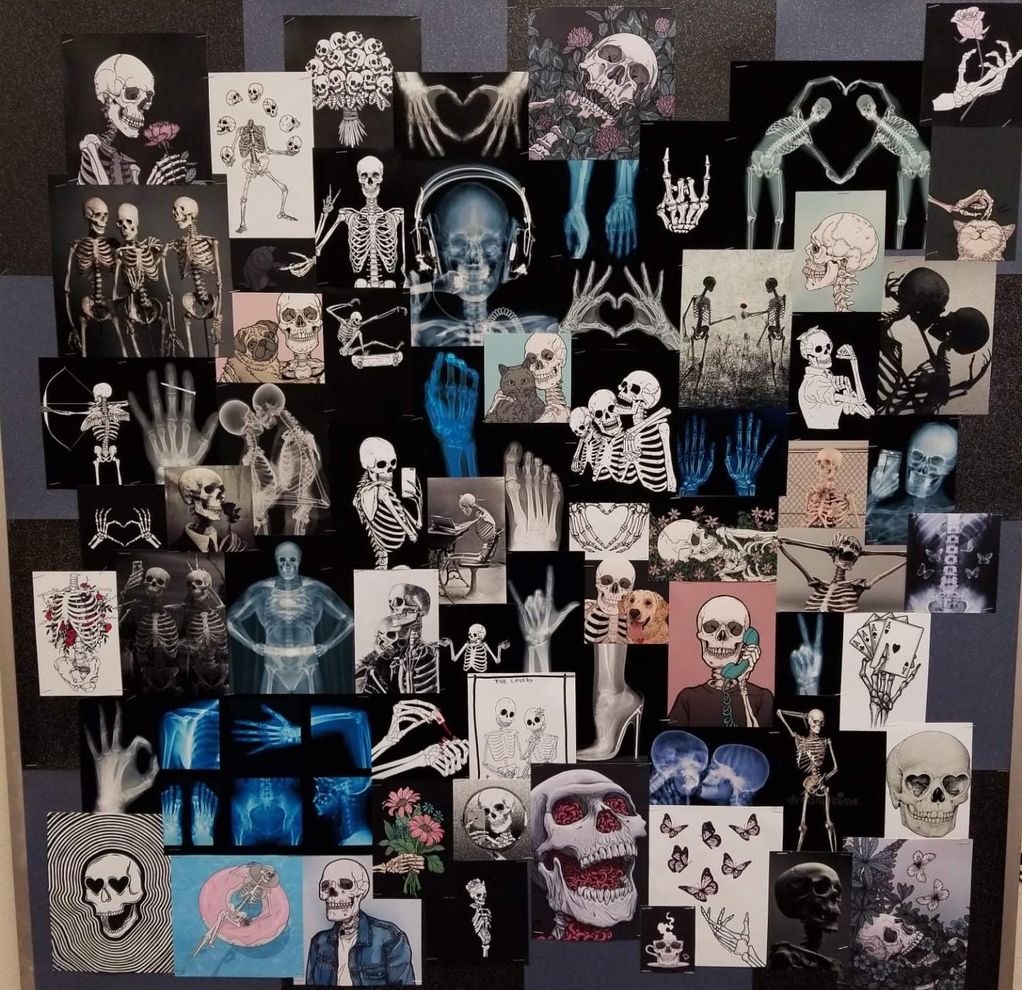 Skeleton Wall