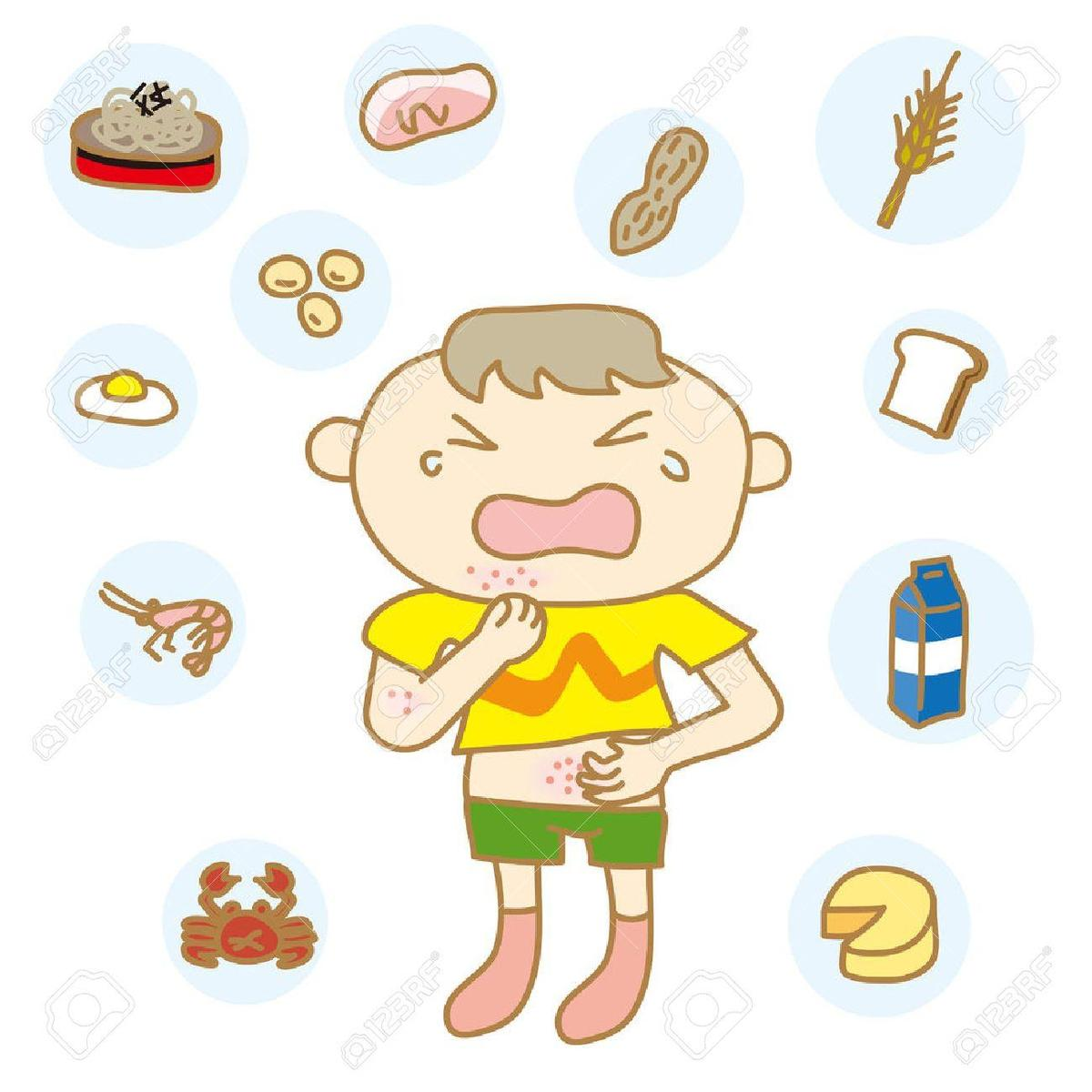 Image result for allergy kids clipart