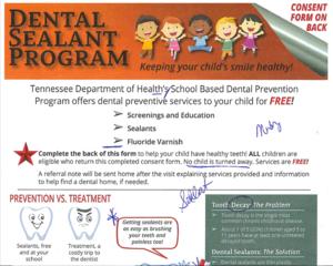 Dental Sealant Photo