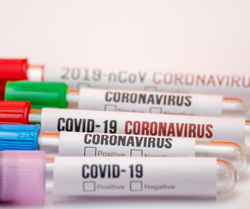 covid 19 test tubes