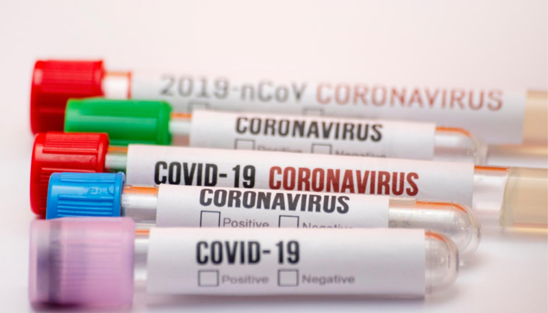 COVID test vials